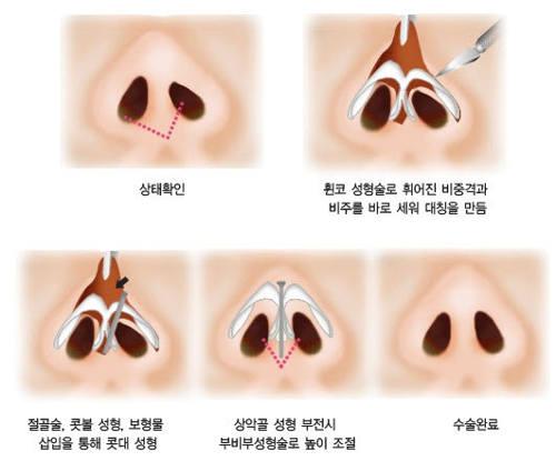 Mô phỏng kỹ thuật thu nhỏ đầu mũi công nghệ Hàn Quốc