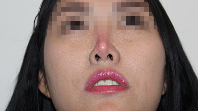 mũi đỏ 1