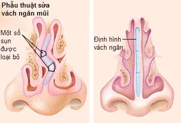 nâng mũi có chữa vẹo vách ngăn không 2