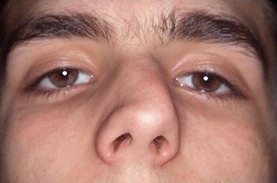 nâng mũi có chữa vẹo vách ngăn không 1