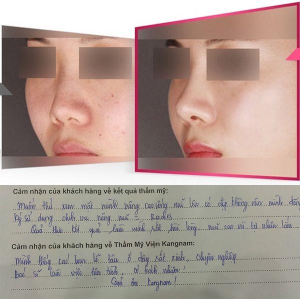 Kết quả khách hàng nâng mũi không phẫu thuật tại Kangnam