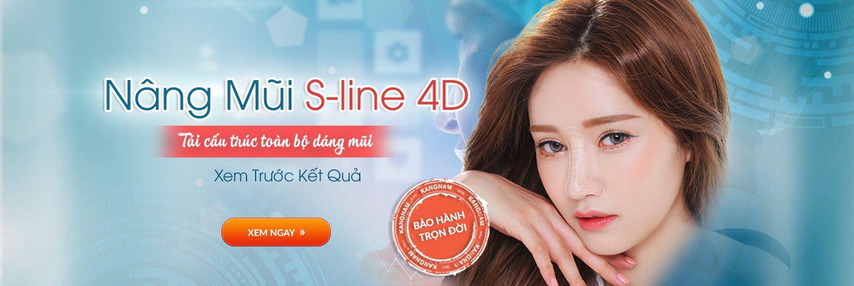 Công nghệ nâng mũi S-line 4D HOT nhất 2017