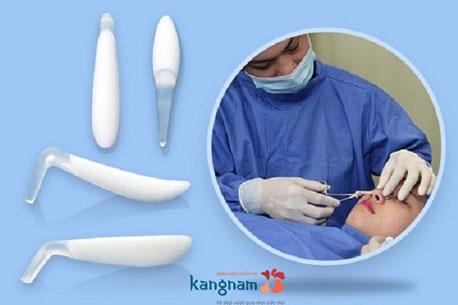 giá phẫu thuật nâng mũi 4549415
