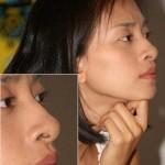 Ngoáy mũi có làm lỗ mũi bị to ra không? Làm sao để khắc phục?