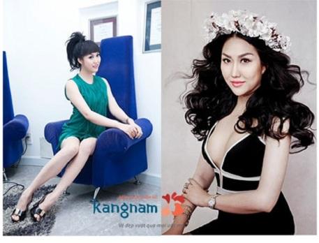 Kết quả thẩm mỹ mũi của Phi Thanh Vân sau thẩm mỹ tại Kangnam