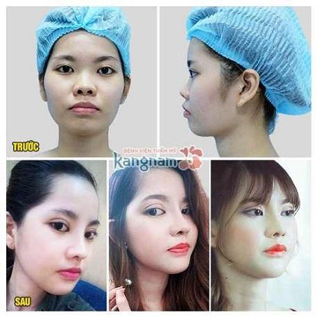 Kết quả của khách hàng sau nâng mũi tại TMV Kangnam