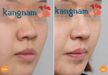 nâng mũi không phẫu thuật2