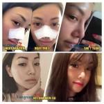 Những triệu chứng sau nâng mũi thường gặp nhất – Cách khắc phục