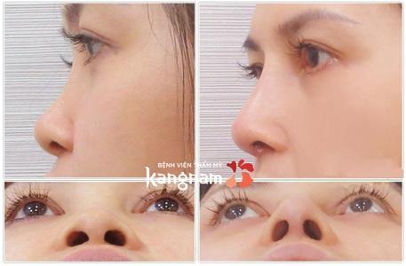 phẫu thuật nâng mũi cấu trúc 4D-10