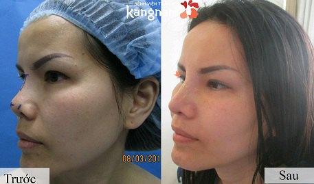 phẫu thuật nâng mũi cấu trúc 4D-12