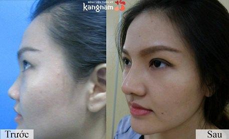 phẫu thuật nâng mũi cấu trúc 4D-13