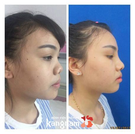 phẫu thuật nâng mũi cấu trúc 4D-7