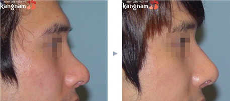 phẫu thuật nâng mũi cấu trúc 4D-8
