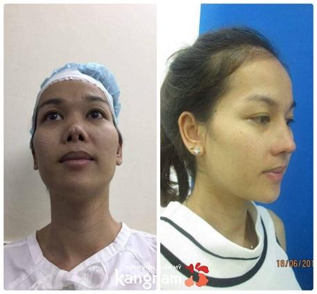 phẫu thuật nâng mũi cấu trúc 4D-5