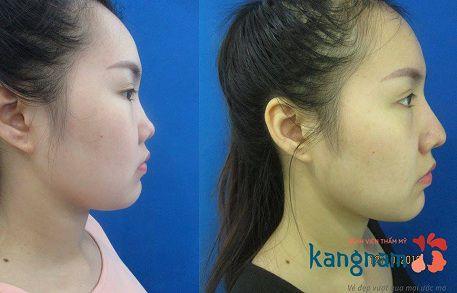 phẫu thuật nâng mũi cấu trúc 4D-3