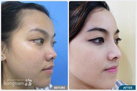 phẫu thuật nâng mũi cấu trúc 4D-11