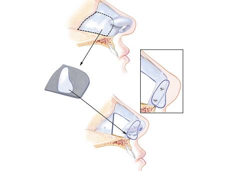 nâng mũi cấu trúc 4D NanoForm-2