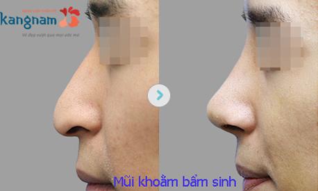 Nâng mũi cấu trúc 4d tự thân 31