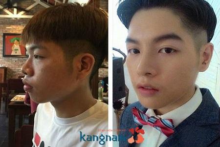 Kết quả trước sau nâng mũi tại Kangnam