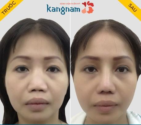 Sự khác biệt của nâng mũi cấu trúc 4D siêu âm 2