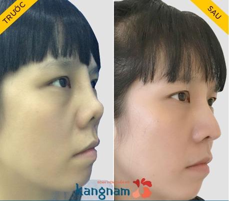 Sự khác biệt của nâng mũi cấu trúc 4D siêu âm 3