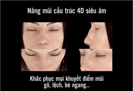 nâng mũi cấu trúc 4D siêu âm