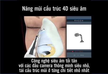 nâng mũi cấu trúc 4D siêu âm 2