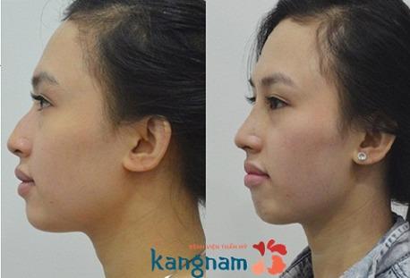 Sự khác biệt của nâng mũi cấu trúc 4D siêu âm 1