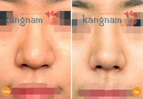 Thu gọn đầu mũi nội soi 27