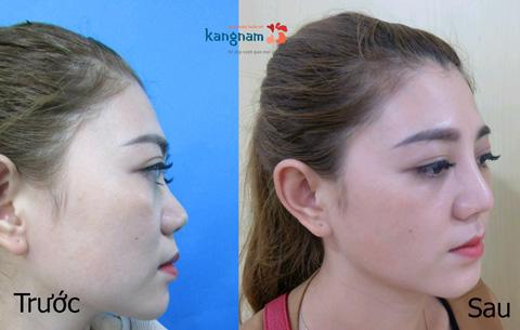 giá phẫu thuật nâng mũi 3