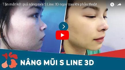 Nâng mũi S line 3D 2