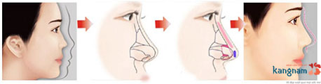 mũi tẹt có xấu không?