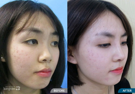 mũi thấp tẹt