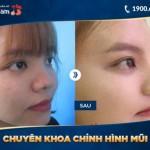 10 lợi ích của phẫu thuật nâng mũi bạn đã biết?