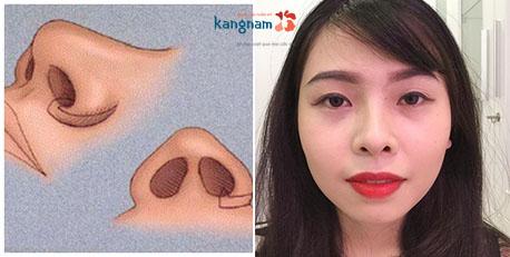 Lời giải rõ nhất: Thu gọn (thu nhỏ) cánh mũi có để lại sẹo không?