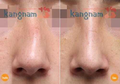 Cách nắn lại sống mũi bị lệch