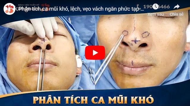 video cách nắn lại sống mũi bị lệch